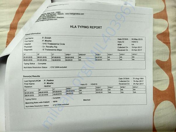 HLA matching report