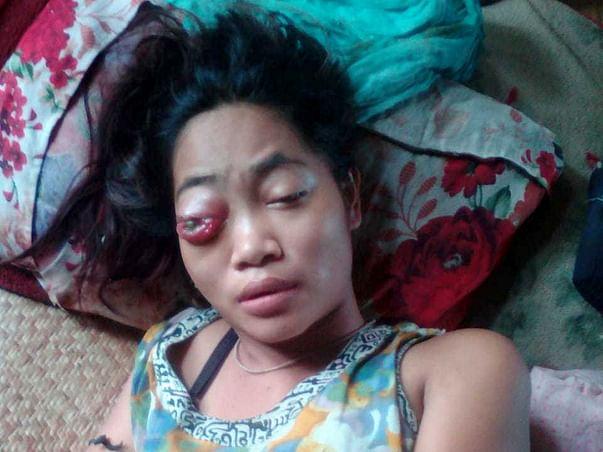 Help Sonali Fight Rhabdomyosarcoma