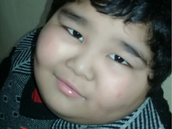 Help My Son With Down Syndrome