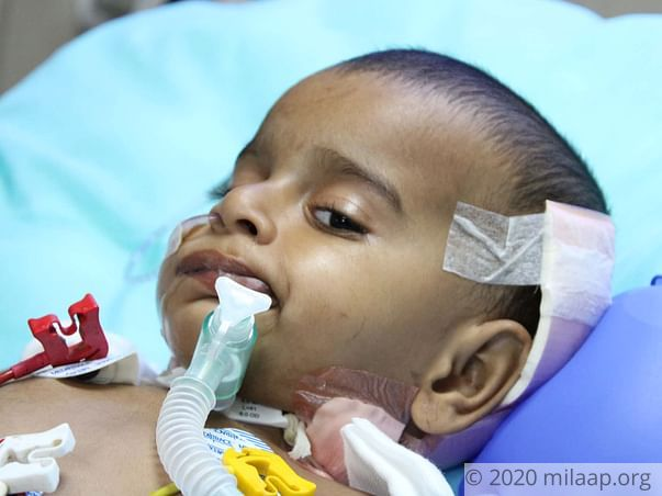 Sharvesh's brain tumor has paralysed him, he needs help to live