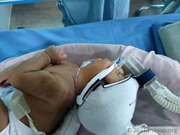 Help this 2-month-old who cannot breathe or eat