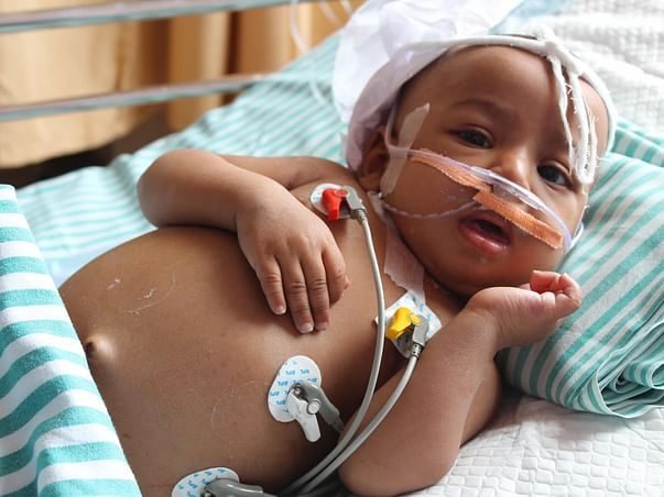 Large Tumor Has Damaged This 9-Month-Old's Liver Completely