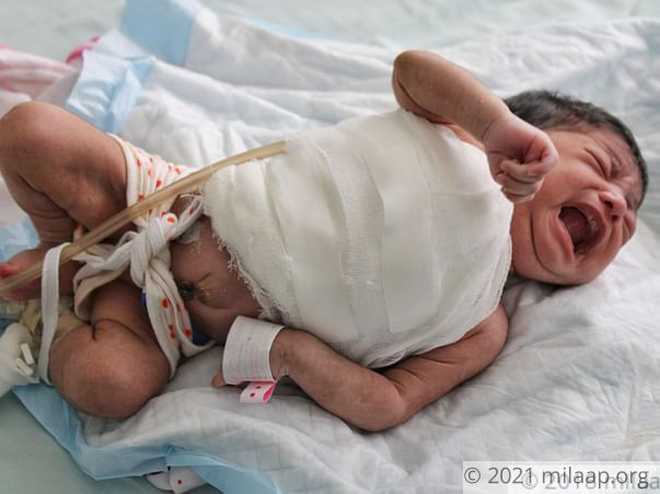 An Aggressive Flesh-Eating Disease Will Kill This 1-Month-Old Baby