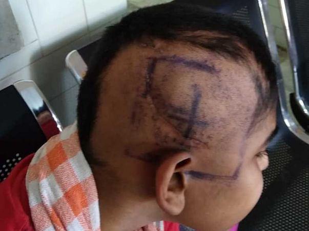 Help Ashwin Samraj to fight brain tumor