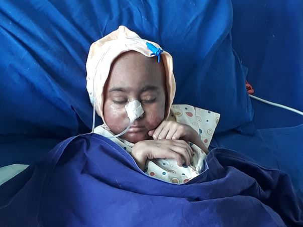 Ishwari(gift by God)Needs Human Help to fight rare Autoimmune Disorder
