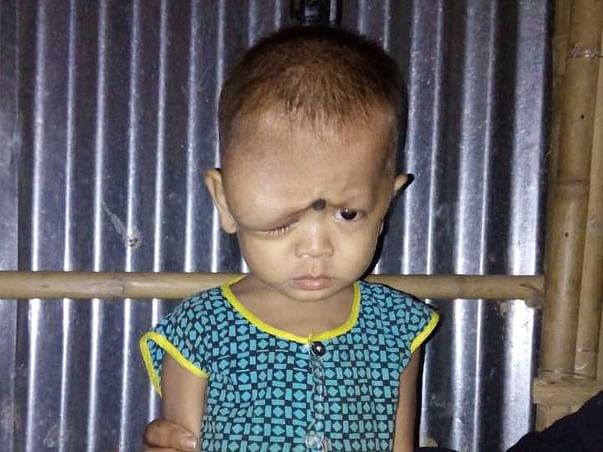 Help Aichuk Fight Against Tumour