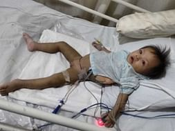 Save Rachel: HELP 10 month old baby from Manipur with fluid in Lungs.