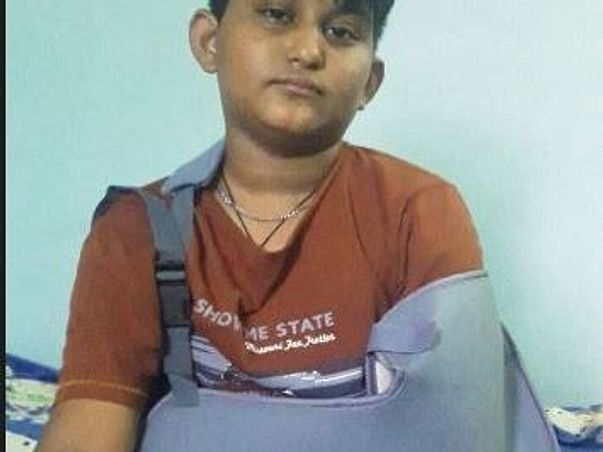 Help A 11-years Old Boy Struggling With Multiple Shoulder Dislocation