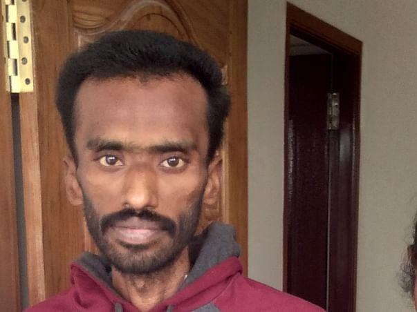 Help Sivakumar to undergo Surgery - Gastrojejunostomy