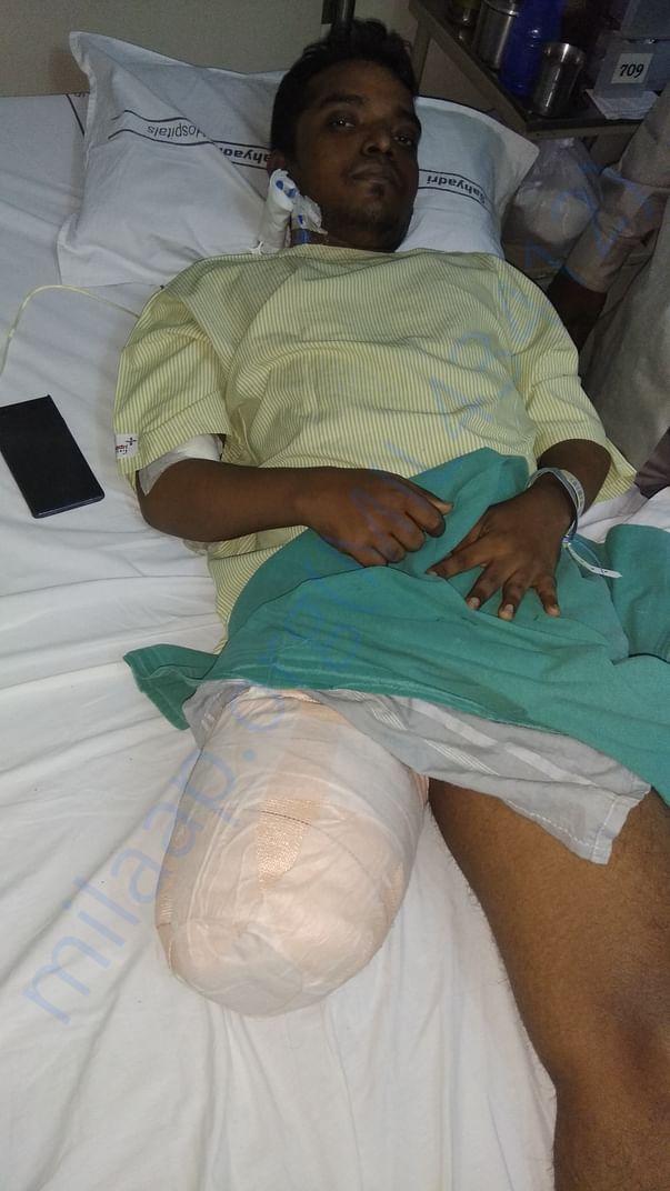 Vilas Right leg amputation due to Hemophilia