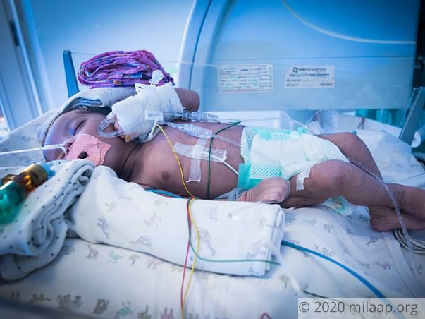 1-Month-Old Baby Who Struggles For Every Breath Needs Urgent Help