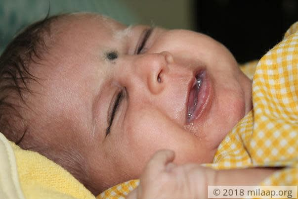 2 Month Old Baby Girl Will Die Of Liver Disease Without An Urgent Surgery Milaap
