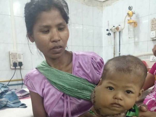 Help Baby Kaokuchangti Fight Against deadly Arteriovenous