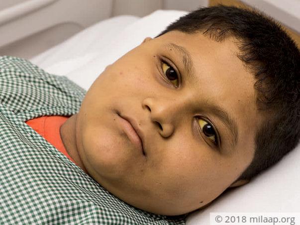 Help Gauranga get a life-saving liver transplant