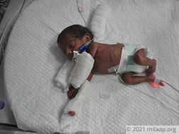 Extremely Premature Twins Fighting Multiple Illnesses Need Urgent Help