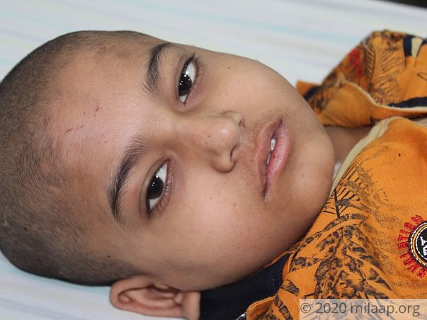 12-Year-Old With Cancer Cannot Recognize His Own Mother, Needs Help