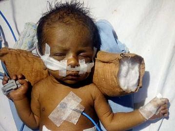 help-baby-of-rekhaa