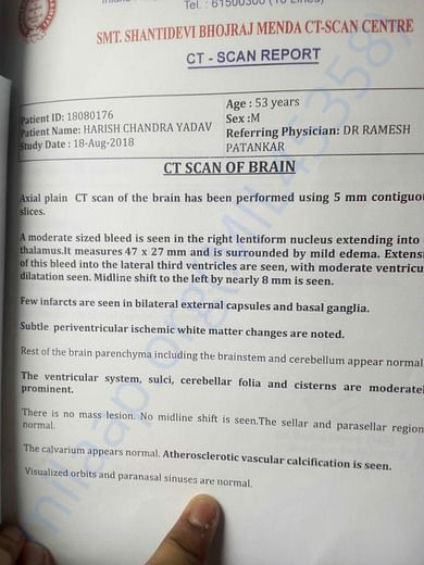 Reports of CT Scan of Brain