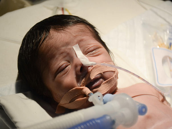 This 7-Day-Old Baby Who Cannot Breathe Needs Surgery Urgently
