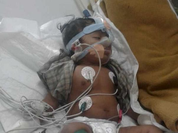 Help 10-Month-Old Samarth Come Out Of Ventilation
