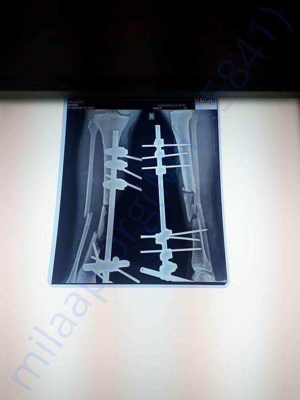 X-ray 4