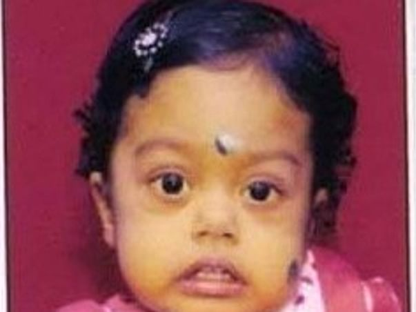 Help Baby Aaradhya  to undergo Liver transplant surgery