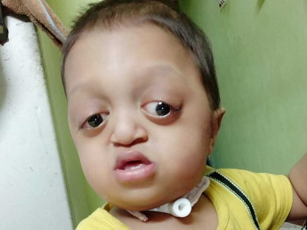 Let's Help This Baby To Lead His Life - Muhammad Ibrahim