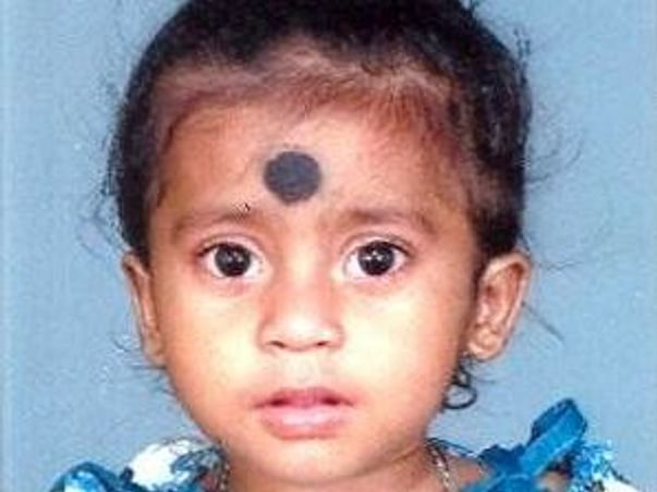 Help little Asha with her heart surgery