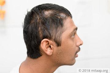 support-sai-krishna