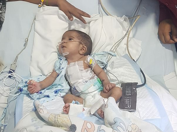 Help Baby Harshit Fight Congenital Heart Disease