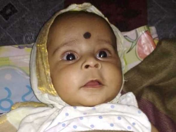 Help 5-month-old Baby Undergo Cataract Surgery A Heart Surgery