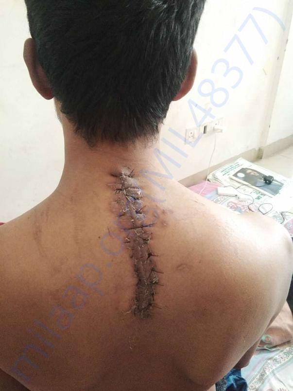 Surgery done on Raju's backbone