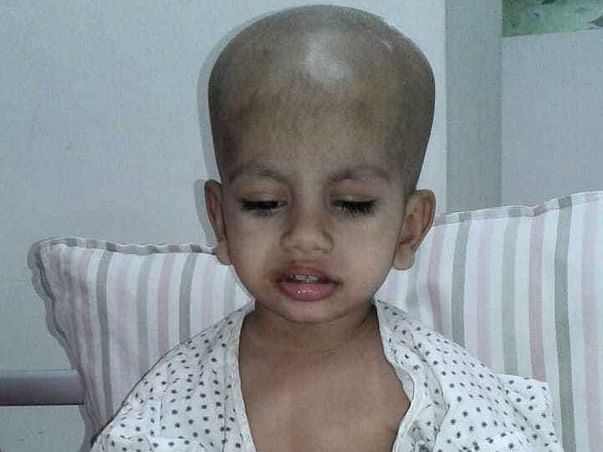Cancer Has Blinded 2-Year-Old Baby Girl, Needs Help Before It Spreads