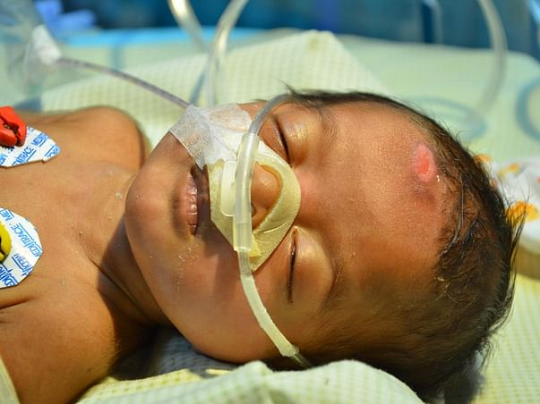 3-Month-Old Baby Girl Suffering From Rare Lung Disease Needs Help