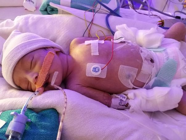 Help My Newborn Baby Girl Fight Congenital Heart Defect - HLHS