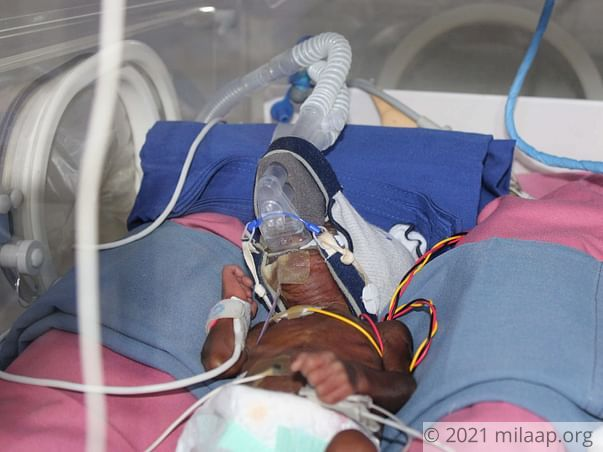 Mother Struggles To Save Only Surviving Baby of Her Triplets