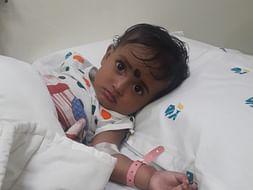 Help 1 Year Old Baby Undergo A Brain Surgery