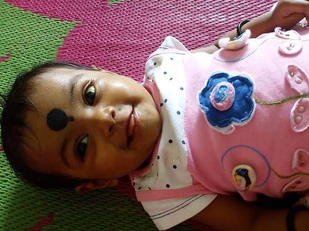 Help 7-Month-Old Hanvika Get A Liver Transplant
