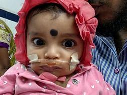 Help 7 Month Baby Aadhvi Undergo A Critical Heart Surgery