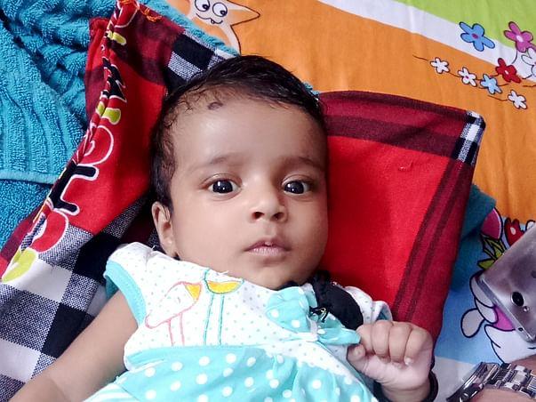 Help 3 Month Old Baby Undergo Liver Transplant