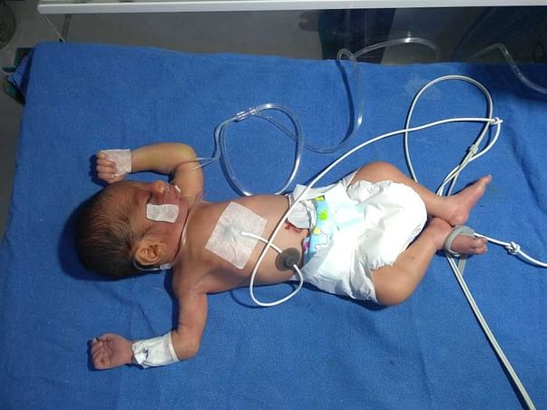 Urgent Help For a Week Old Baby