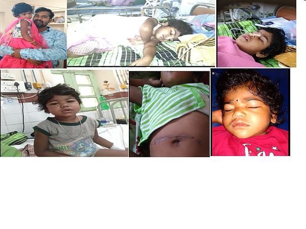 Help 3 Year Old Suffering From A Rare Disease