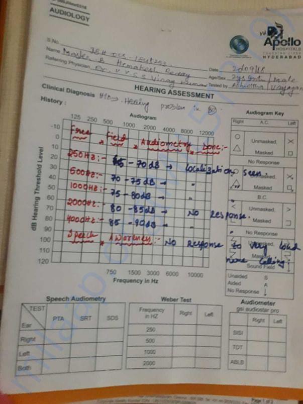 Assessment report on hearing for kid