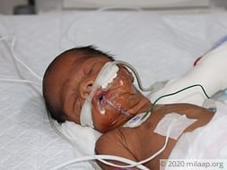 Helpless Mother Is Struggling To Save Her Premature Baby