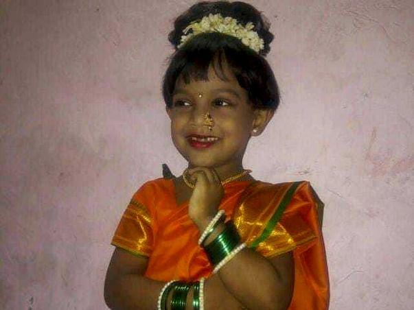 Help 5 year old Yukti - Chronic Kidney disease