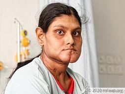 Paramita needs your support to undergo her treatment