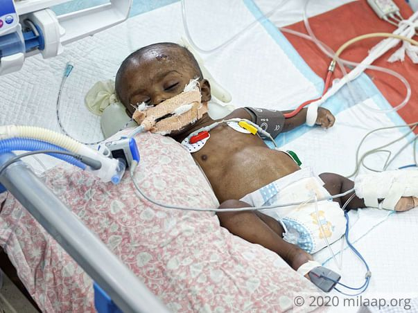 Despite Being On Ventilator, This Baby Boy Will Die Without Help Now