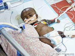 Amlan Das needs your help to fight cardiac disease