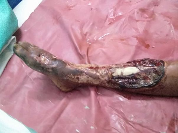 45-Year-Old need help to save his infected leg
