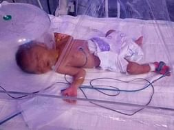 Save My 8-days-Old Premature Baby With Underdeveloped Organs